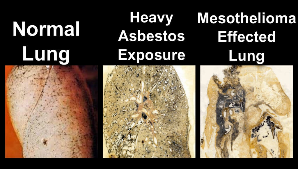 asbestos removal services in Kitchener-Waterloo ontario